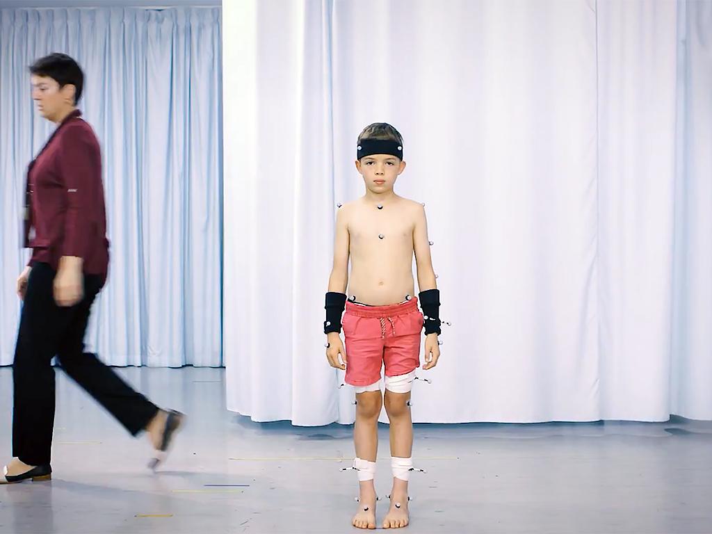 自閉症の人の多くに、ロボットのような歩行など運動機能の問題も w4