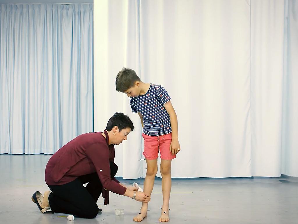 自閉症の子の多くには運動機能の障害もある w6