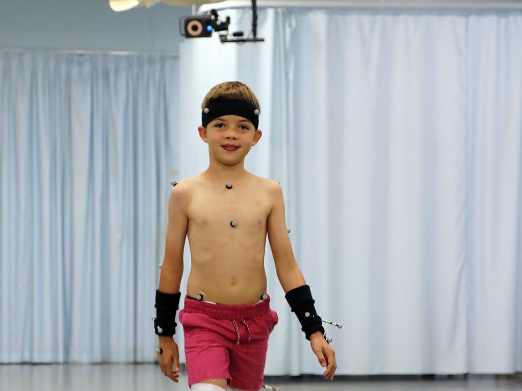 自閉症の人の多くに、ロボットのような歩行など運動機能の問題も