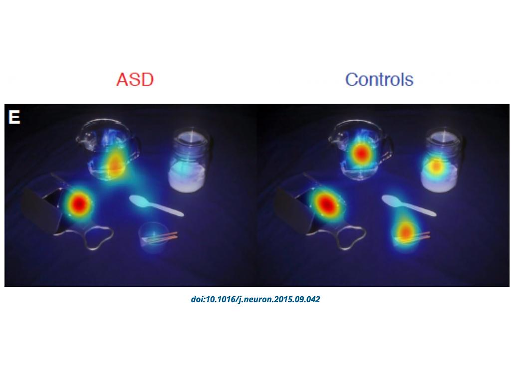 目の動きの調査結果、発達障害の人が見ないのは顔や目だけでない