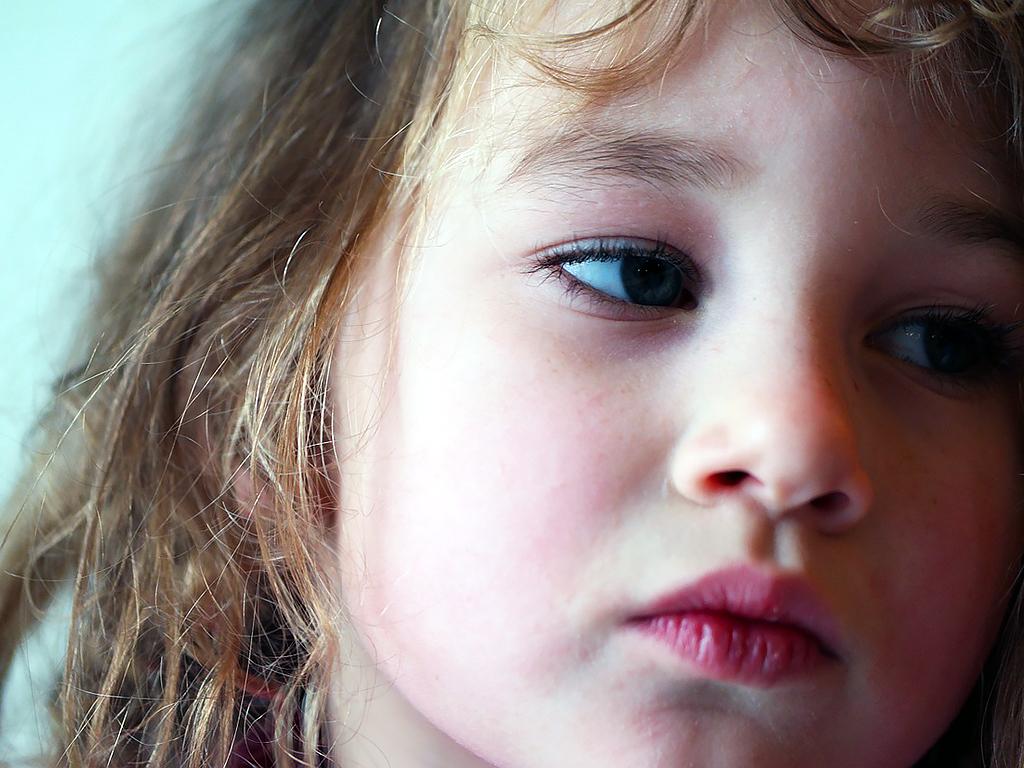 自閉症の女の子のほうが日常生活での困難をかかえることが多い g4