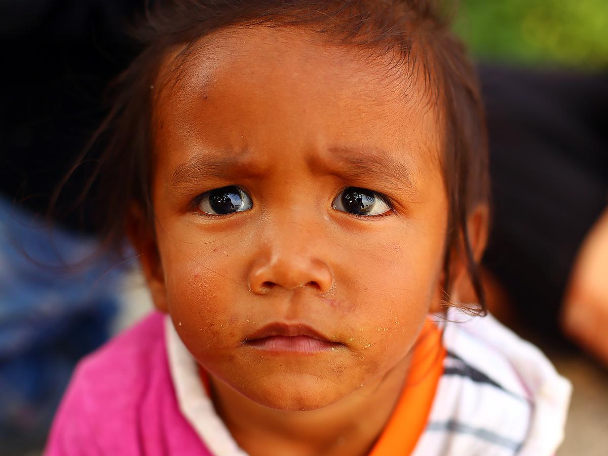 発達障害の成人のほぼ半数がうつ病になっている。子どもも多い d4