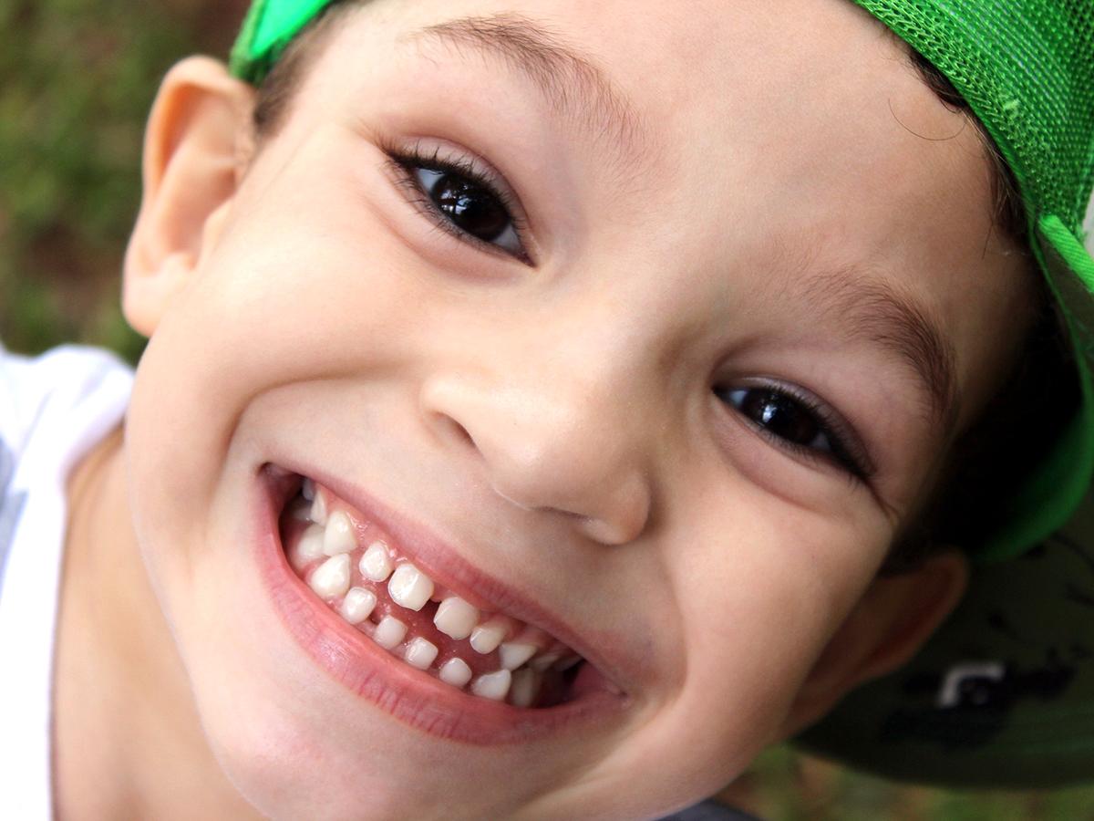 「便移植」で重症の自閉症の子が47パーセント減。研究結果 b1